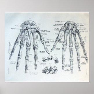 Poster Illustration médicale des os de la main