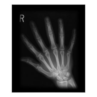 Poster Main droite supplémentaire de rayon X de chiffre