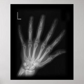 Poster Main gauche supplémentaire de rayon X de chiffre