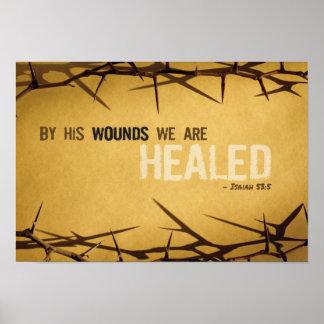 Poster Par sa copie d'art de blessures