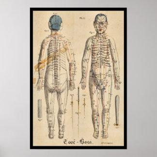 Poster Points 1825 vintages de méridien d'acuponcture de