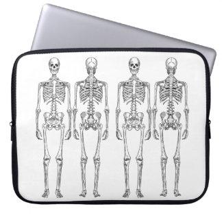 Protection Pour Ordinateur Portable Douille squelettique d'ordinateur portable du