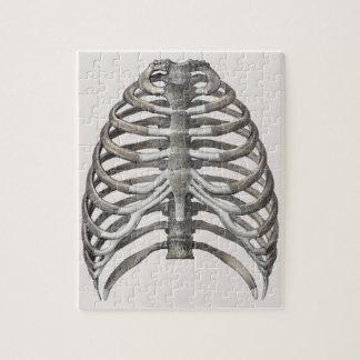 Puzzle Os squelettiques squelettiques de nervures