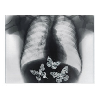 Rayon X des papillons dans l'estomac Cartes Postales