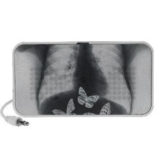 Rayon X des papillons dans l'estomac Haut-parleurs iPod