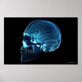 Rayon X du cerveau à l'intérieur d'un crâne Posters