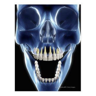 Regard de style de rayon X aux dents humaines Carte Postale