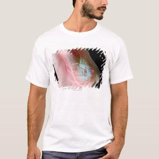 T-shirt Cancer du sein