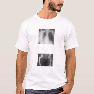 T-shirt Ma hanche juste fendue de la tristesse