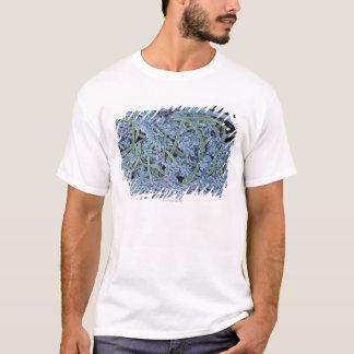 T-shirt Plaque dentaire, électron de balayage coloré