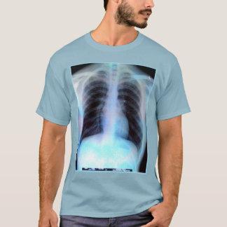 T-shirt Radiologie de chemise de rayon X de cage