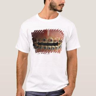 T-shirt Un modèle dentaire et croisillons de dents