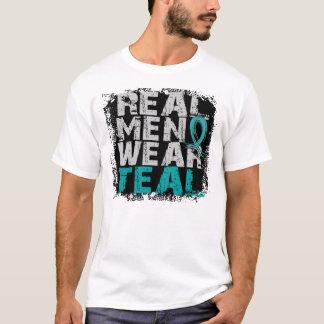 T-shirt Vrais vêtements pour hommes Syndrom ovarien