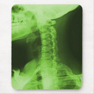 Tapis De Souris 2 radiographiés - Vert radioactif
