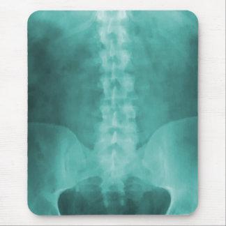Tapis De Souris Art Mousepad de rayon X de Digitals d'Aqua