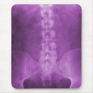 Tapis De Souris Art pourpre Mousepad de rayon X de Digitals