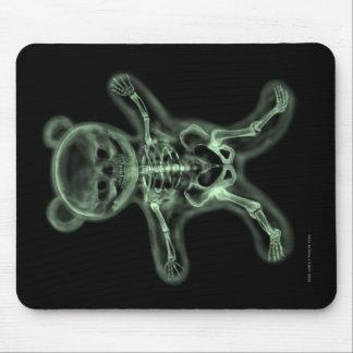 Tapis De Souris ours câlin de rayon X