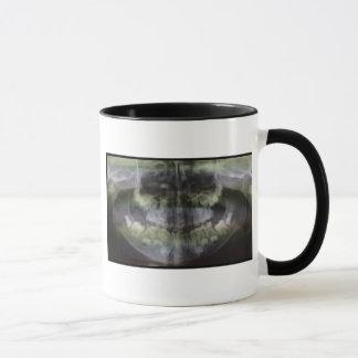 Tasse de café d'OPG